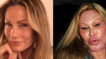 13 Celebrity Who Were Caught In Shocking Plastic Surgery Disasters