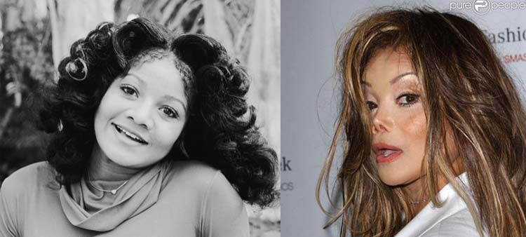 latoya-jackson-before-after