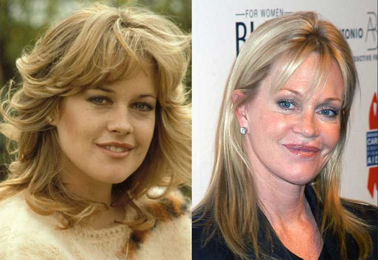 melanie-griffith-before-after
