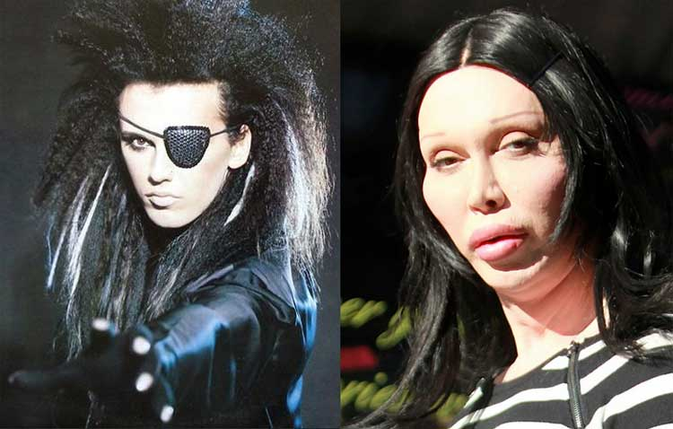 pete-burns-before-after